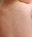 Amoxicillin rash 26 hours after 17th dose.JPG