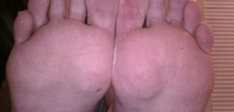 Ball (foot) - A focus on the balls of a person's feet