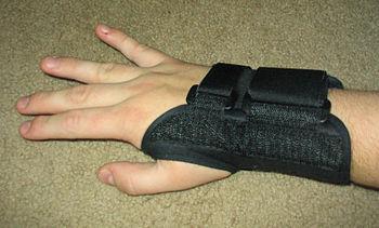 A rigid splint can keep the wrist straight.