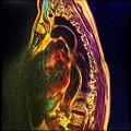 Dorsal spine MRI Scoliosis 15.jpg