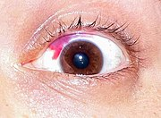 A subconjunctival hemorrhage is a common and relatively minor post-LASIK complication.