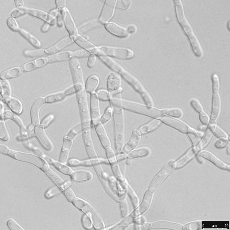 800px-Filamentous_cell_state_of_Yarrowia_lipolytica.jpg