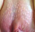 Fordyce's Spots on Vulva.png