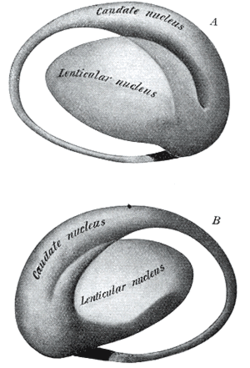 Lentiform nucleus - Wikipedia, the free encyclopedia