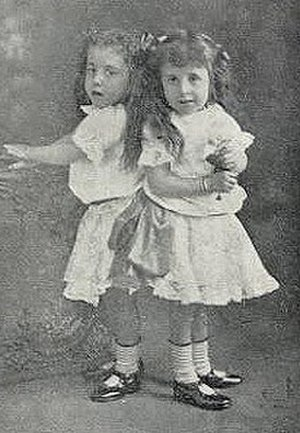 Daisy and Violet Hilton - Daisy and Violet as kids