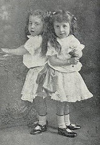 Daisy and Violet Hilton - Daisy and Violet as children