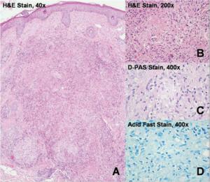 Lupus miliaris disseminatus faciei (LMDF)-Dermatol Sinica 2007;25(2)175-176-2.png