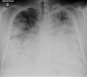 Legionnaires' disease - Wikipedia