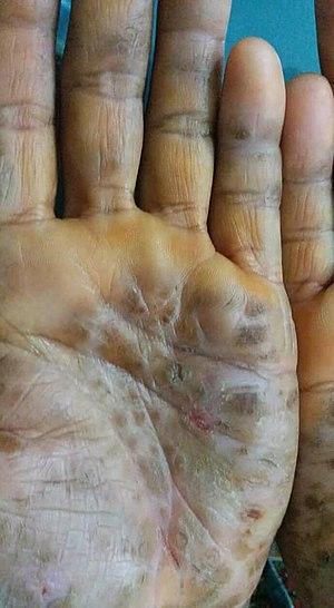 Palmoplantet keratoderma new photo.jpg