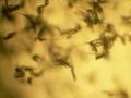 Penicillium digitatum conidiophores 40X (1).png