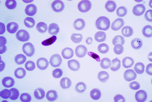 Plasmodium falciparum - Blood smear of Plasmodium falciparum (gametocytes - sexual forms)