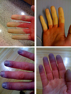 Hands with Raynaud's phenomenon