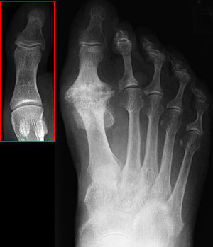 Deutsch: Hallux rigidus durch Arthrose im Grun...