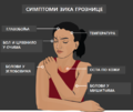Sintomas da Febre Zika.srp.срп.png