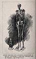 Skeletons of a male giant and a female dwarf, displayed at t Wellcome V0013497.jpg