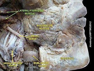 Buccinator muscle - Image: Slide 1vv