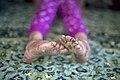 بیماری پروانه ای یا بیماری ای بی در کودکان مناطق محروم جنوب کرمان- ایران 07.jpg