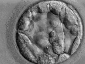 Responsible Parenthood and Reproductive Health Act of 2012 - 5-day old human embryo called a blastocyst, which comprises 70–100 cells.