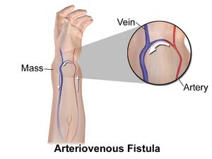 arteriovenous fistula wikipedia