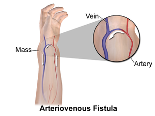 Arteriovenous fistula abnormal, epithelial-lined connection between an artery and vein that is present at the time of birth