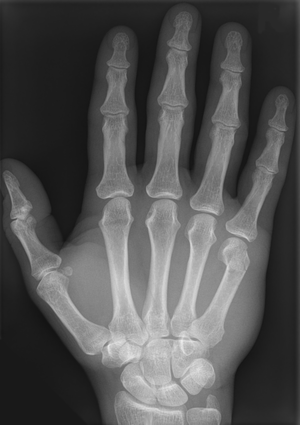 English: Boxer's fracture of fifth metacarpal ...