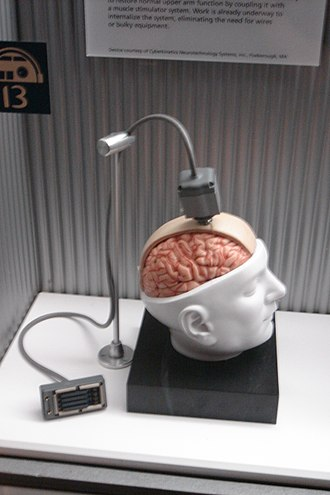 Brain–computer interface - Dummy unit illustrating the design of a BrainGate interface