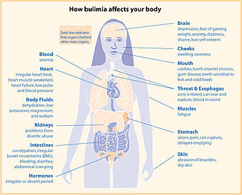 Best Foods For Bulimia Recovery