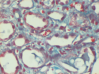 Gömöri trichrome stain - Image: Dilated peri tubular capillaries filled with sickled RB Cs, original Gomori's trichrome stain