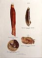 Diseased muscles; trichinosis, hamartoma, syphilis, fibrosis Wellcome V0010322ER.jpg