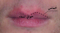Erythema around the lips-ar.png