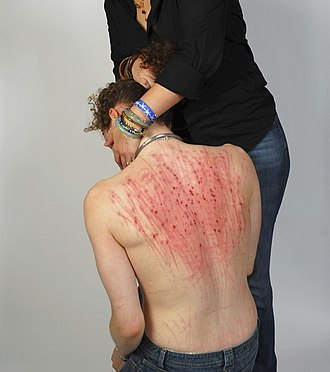 Edgeplay - A submissive man is consoled by his mistress after she has made his back bloody through massive beating.