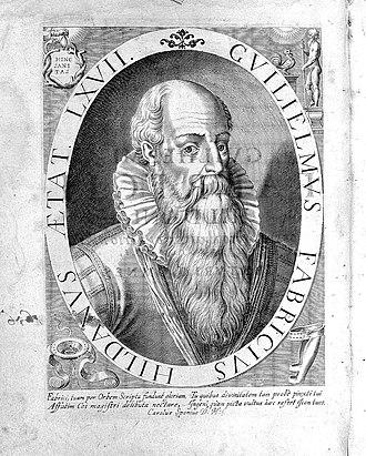 Wilhelm Fabry - Guilelmus Fabricus Hildanus, Observationum et Curationum Chirurgicarum Centuriae, 1641.