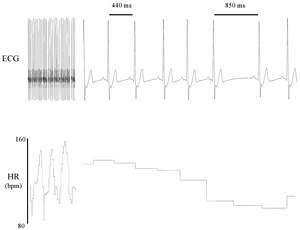 Heart rate variability - Electrocardiogram (ECG) recording of a canine heart that illustrates beat-to-beat variability in R–R interval (top) and heart rate (bottom).