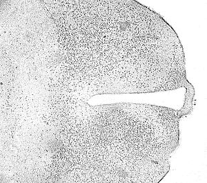 Immunohistochemistry - Mouse-brain slice stained by Immunohistochemistry.