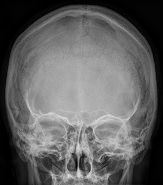 Interparietal bone - Radiograph of the skull showing an interparietal bone between the occiput and parietal bones