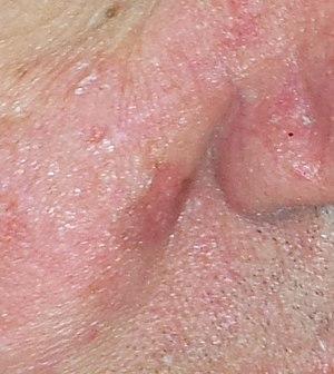 Irregular coloured patch on skin near nose..jpg