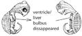 J2. Thoracal bulbus disappeared (V10b).png