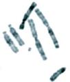 Karyotype of Indian muntjac (Muntiacus muntjak).png