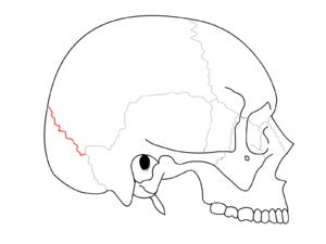 Lambdoid suture - Lambdoid suture (shown in red line)