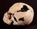 Lingolsheim Crâne à double trépanation.jpg