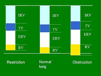 Lung volumes - Scheme of changes in lung volumes in restricted and obstructed lung in comparison with healthy lung.