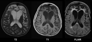 Cerebral atrophy - Pick's Disease showing brain atrophy,