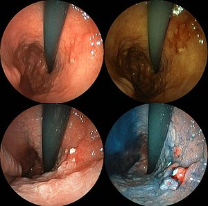 English: Stomach cancer shown by EGD. Its hist...