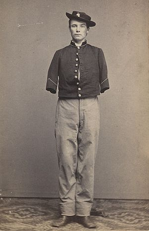53rd Pennsylvania Infantry - Pvt William Sergeant of Company E, 53rd Pennsylvania after the amputation of both arms, 1862