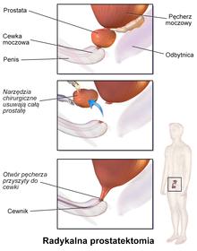 krem do zwiększenia montażu penisa penty starikov