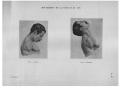 Richer - Anatomie artistique, 2 p. 104.png