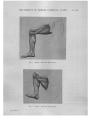 Richer - Anatomie artistique, 2 p. 142.png