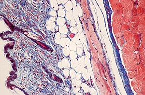Masson's trichrome stain - Mouse skin stained with Masson's trichrome stain.