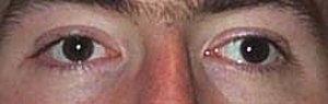 Hirschberg test - Positive Hirschberg sign: the light falls on the centre of the right pupil, but is medial to the centre of the left pupil; therefore, the person in the picture has left exotropia.