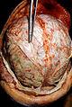 Streptococcus pneumoniae meningitis, gross pathology 33 lores.jpg
